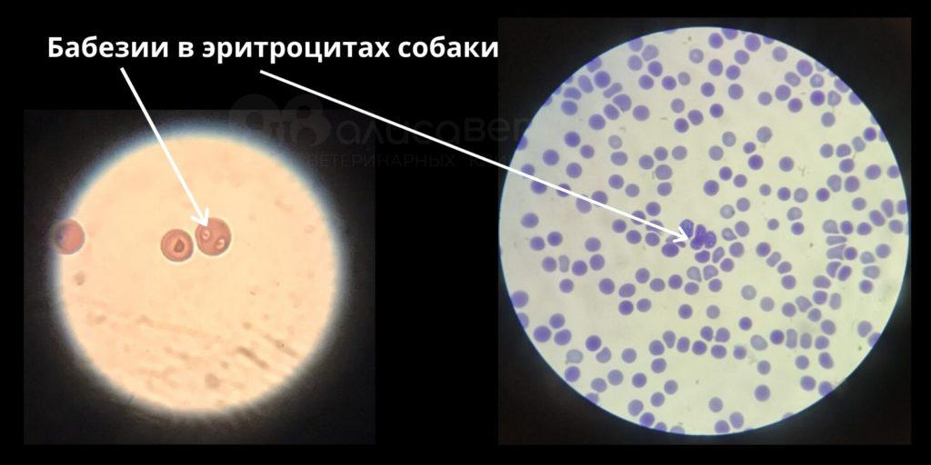 При попадании в кровь паразиты начинают атаковать эритроциты для того, чтобы размножится внутри клетки, и вызвать ее гибель.